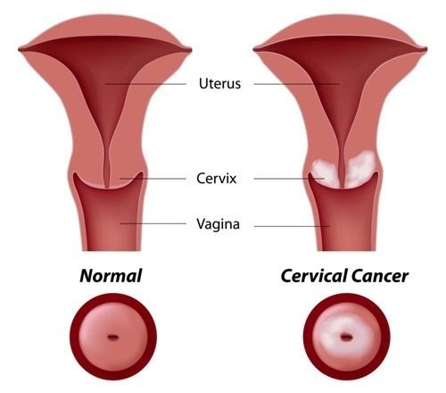 Gráfico que muestra el cáncer de cuello uterino