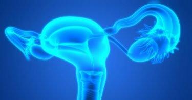 cáncer de cuello uterino 3