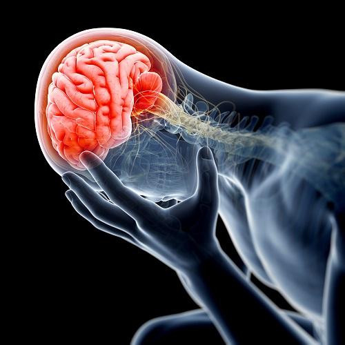 Una imagen ilustrada del padecimiento de la cefalea emocional