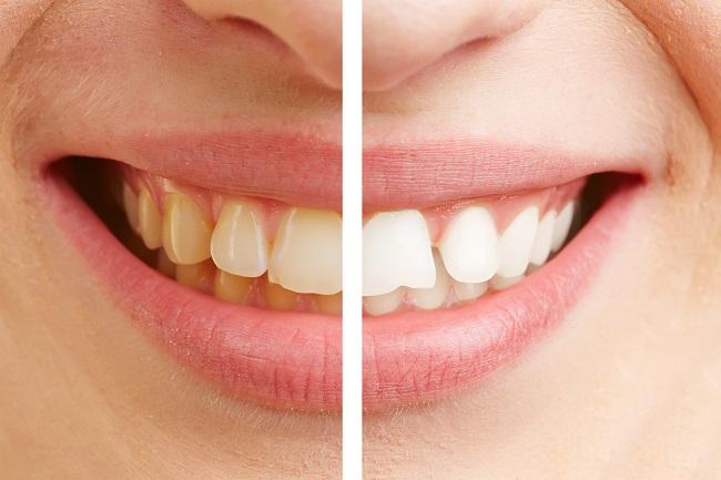 Una imagen de la sonrisa de una mujer antes y después de eliminar el sarro