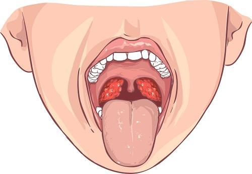 mostrando una Inflamación de las amígdalas