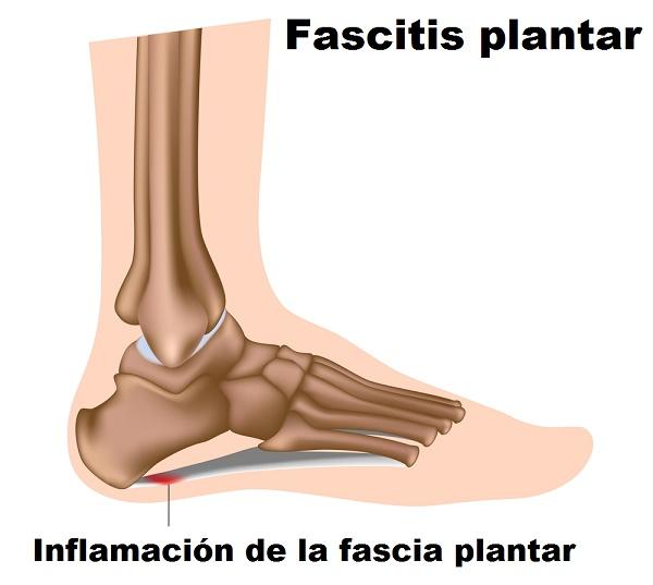 fascitis-plantar