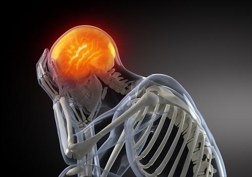 Ilustración del dolor de cabeza