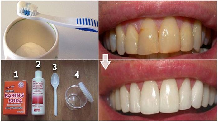 Eliminar la placa dental con remedios naturales