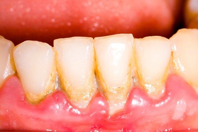 Interior de una boca llena de placa dental y sarro en los dientes