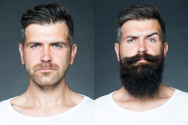 Un antes y después de un hombre con borba