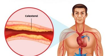 destapar-las-arterias-obstruidas