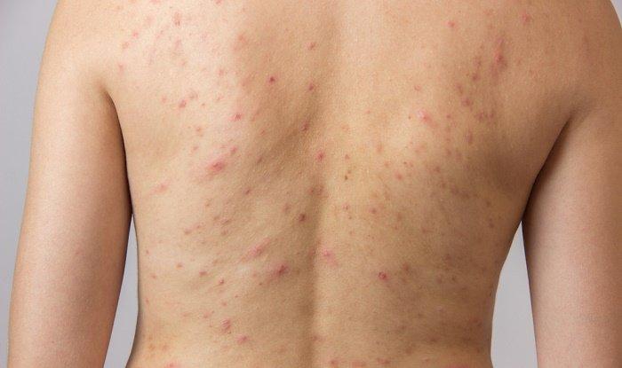 acne-en-la-espalda