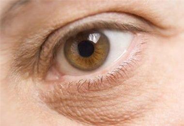 piel-seca-alrededor-de-los-ojos