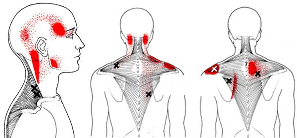 miyofasyal ağrı kasla