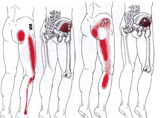 dolor-miofacscial-piernas