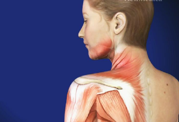 sindrome-del-dolor-miofacial