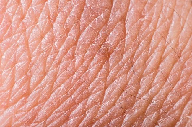 Arrugas en la piel por desequilibrio hormonal