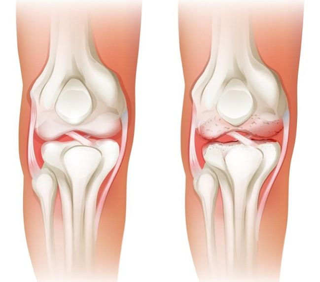 huesos-debiles
