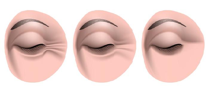 reducir-las-arrugas-en-los-ojos