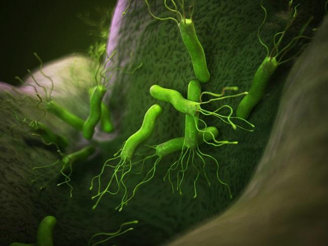 Los 6 síntomas más ocultos del helicobacter pylori