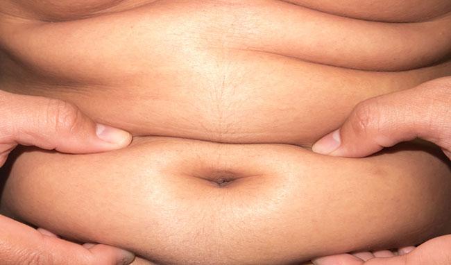 Acumulación de grasa abdominal por desequilibrio hormonal