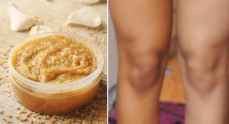 Una crema casera y rodillas más balncas