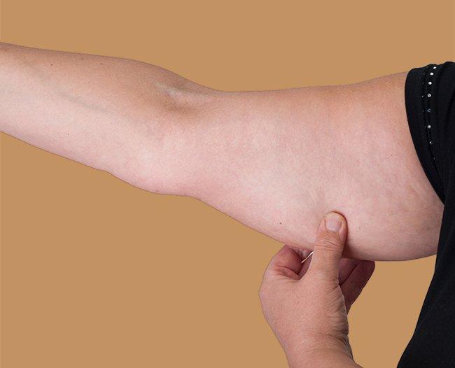 Mujer con flacidez en los brazos