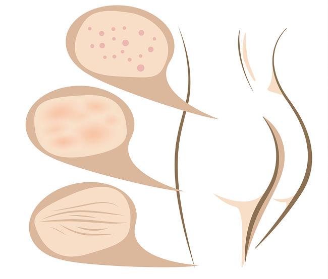 distinta apariencia de la celulitis en el cuerpo