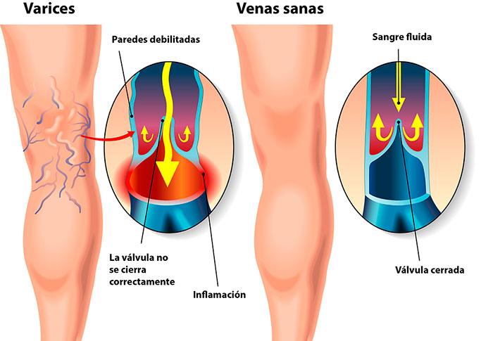 Gráfico que muestra la diferencia entre venas normales y venas varicosas