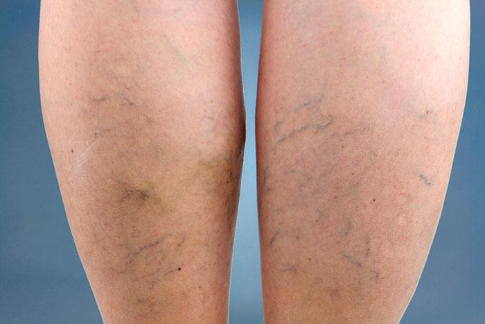 Piernas balncas de mujer con varices y arañas vasculares