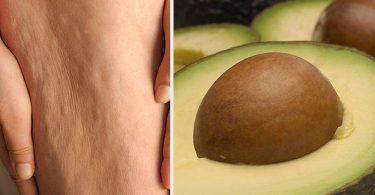 piel con celulitis y semillas de aguacate para tratarla