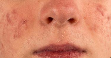 Mujer joven con marcas de acné en su cara