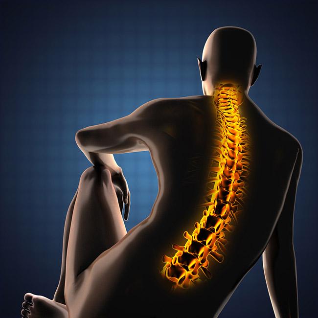 Imagen de escoliosis en la espalda con radiografía
