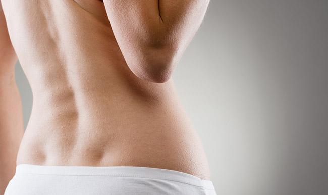 Mujer con escoliosis en la espalda