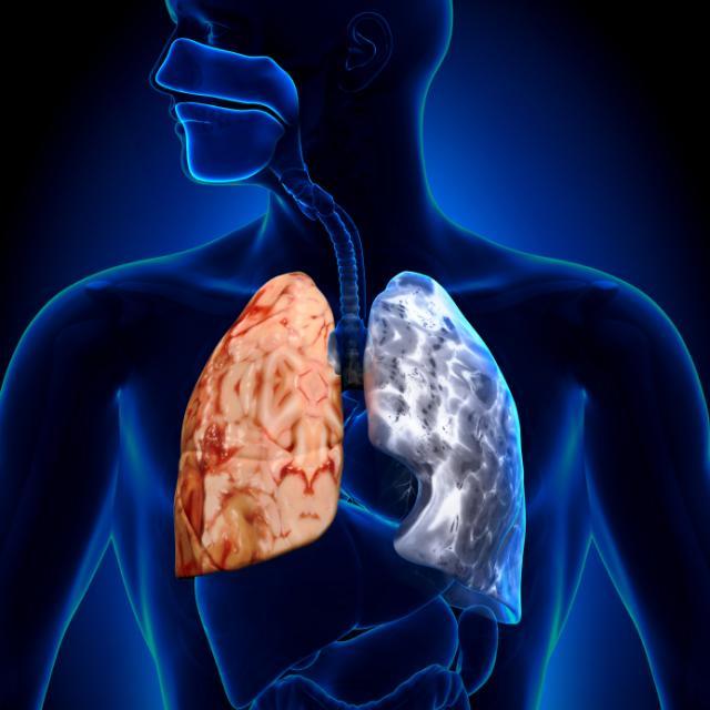 Alimentos que revierten la enfermedad pulmonar obstructiva