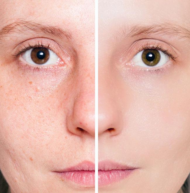 Marcaas del acné antes y después