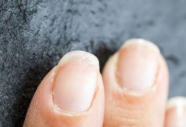 Mujer con uñas débiles y maltratadas
