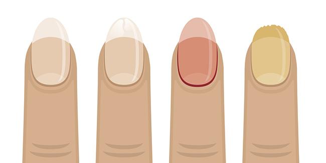 Una imagen que demuestra los diferentes tipos de uñas maltratadas