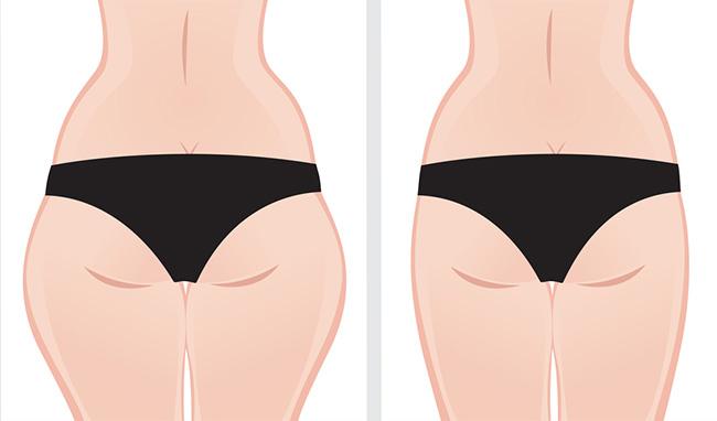 Mujer antes y después de realizar ejercicios para disminuir las chaparreras