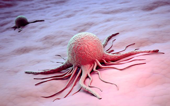 Celular cancerosas por mala dieta y factores ambientales