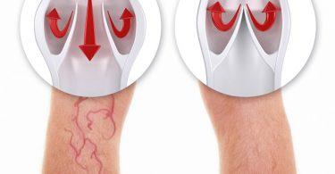 Gráfico que muestra la aparición de várices en piernas