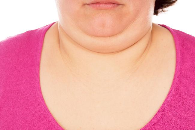 Mujer con el cuello inflamado por padecer hipertiroidismo