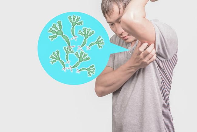Resultado de imagen para ¿Qué síntomas Hongos Axilas?