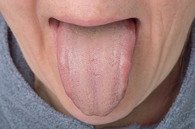 Hombre joven con lengua blanca y problemas estomacales