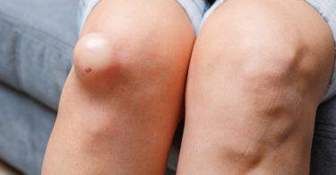Mujer con líquido en las rodillas que necesita tratamiento