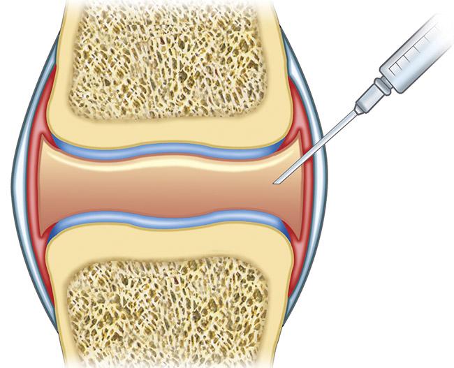 Tratamiento para sacar el líquido de las rodillas