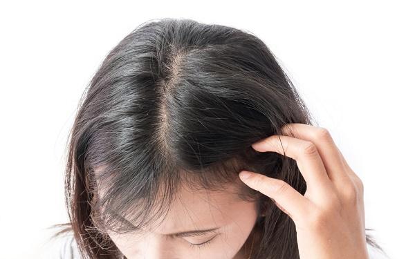 desbalance hormonal prueba del pelo