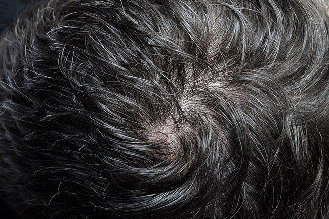 Hombre con el cabello fino que desea tener pelo más grueso
