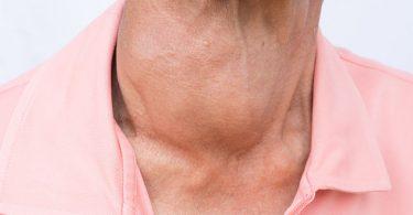 Conoce las causas del hipertiroidismo