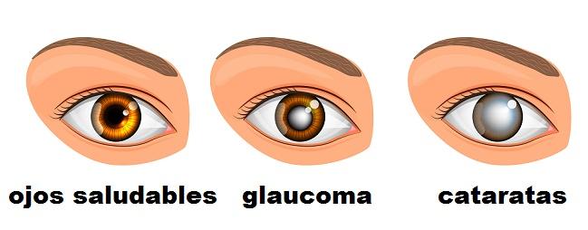 remedios naturales con aloe vera para problemas para los ojos