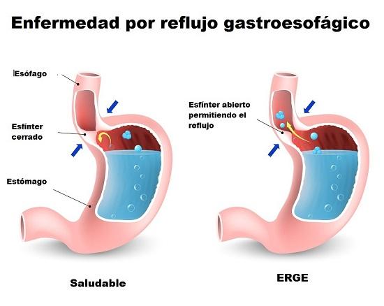 tipos de tos reflujo ácido