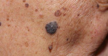 mujer con signos de cáncer en la piel