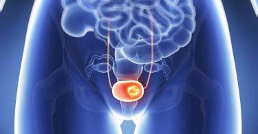 La crema la cera de la salud de la psoriasis