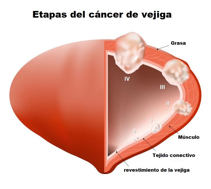cáncer de vejiga etapas